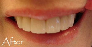 Teeth after veneers
