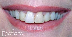 Teeth before veneers
