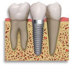 Scottsdale AZ Dental Implants