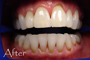 After Photo - ZOOM whitening by Judy Huey DDS