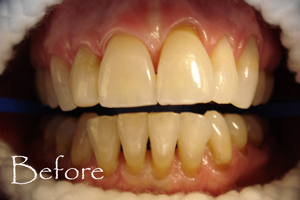 Before Photo - ZOOM whitening by Judy Huey DDS